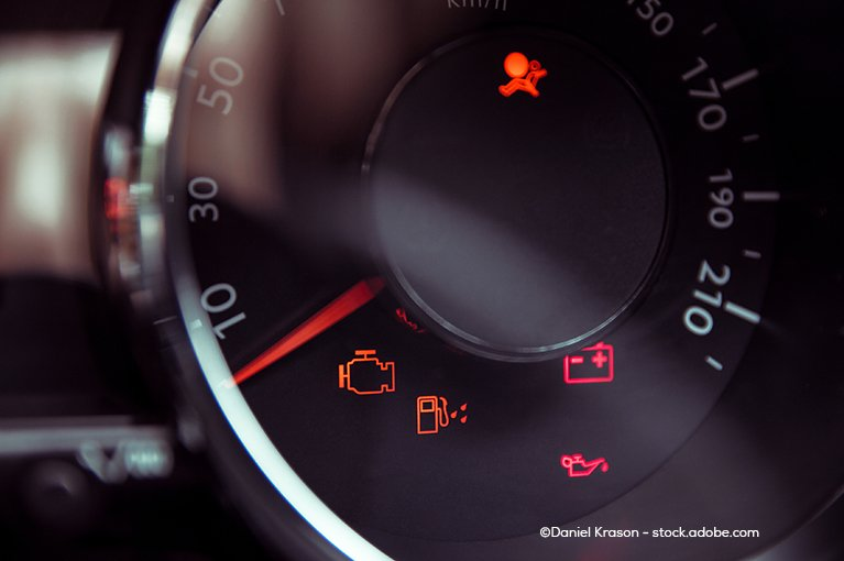 Check engine light, airbag light, and other lights flash on the dashboard